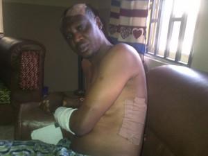 Injured SOJ
