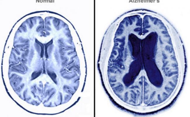 Alzheimer 1-Fullscreen capture 6162016 81129 PM