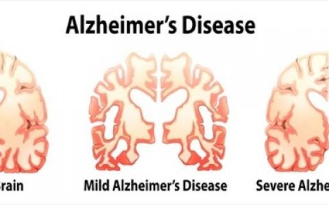brain-degeneration-in-alzheimer-disease